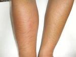 キアシナガバチに刺されてから1日後の症状比較(郡山市、2010年9月上旬).jpg
