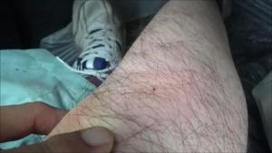 郡山市でスズメバチに刺されて1時間後.png